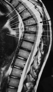 thoracic-kyphosis-MRI1